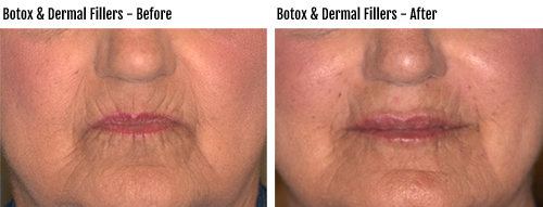 Botox and Dermal Fillers Before & After